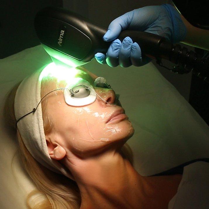 zabieg laserowy Ewy Gawryluk